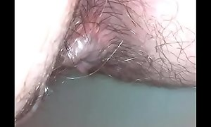 Amazing endoscope dirty asshole exploration and move around attack are you ready?